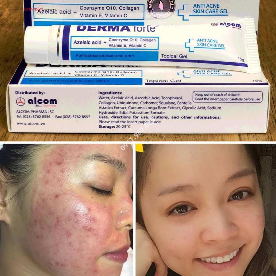 Derma Forte anti acne gel