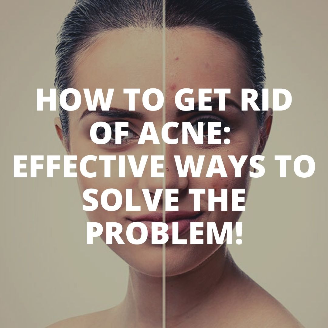 How to get rid of acne Effective way
