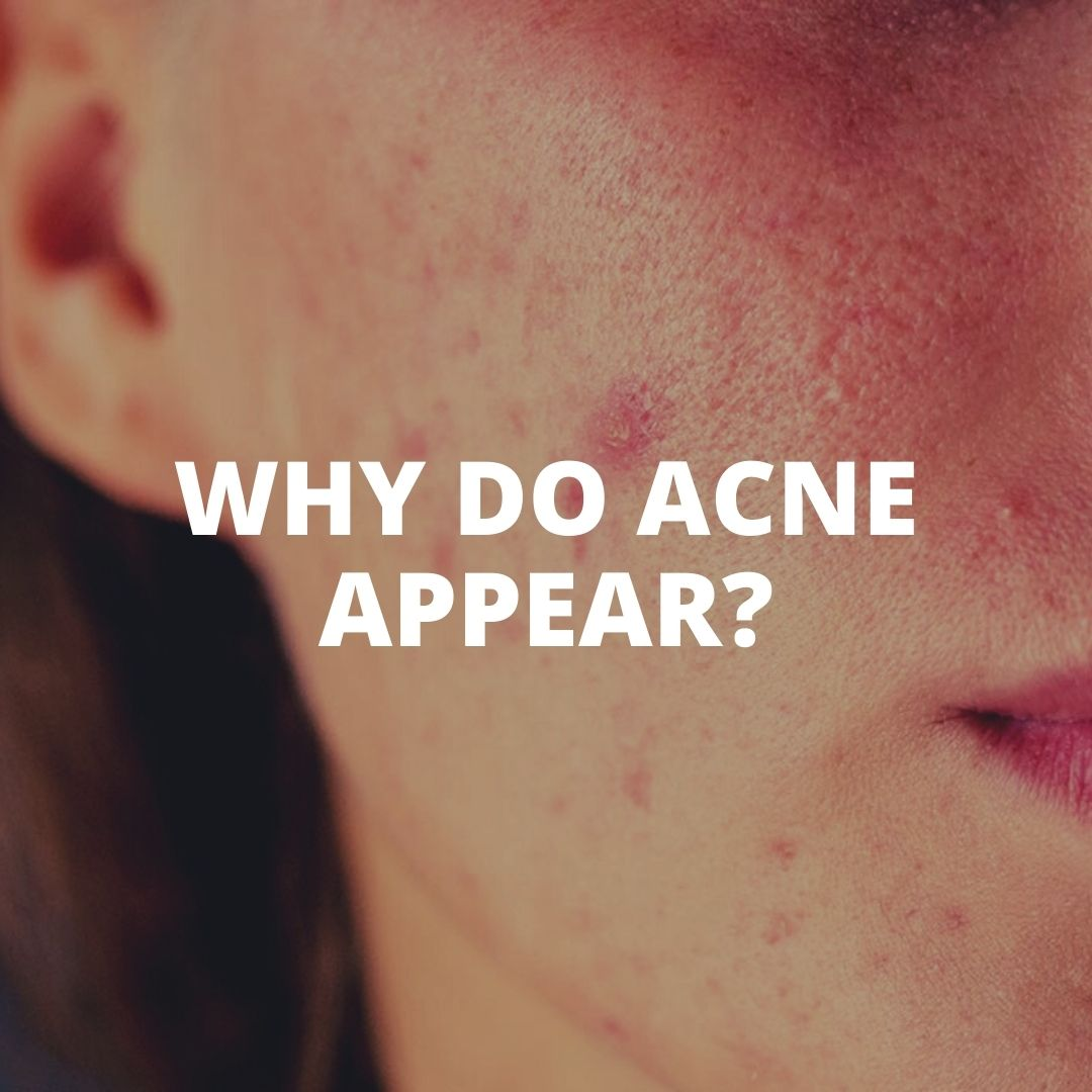 Why do acne appear?