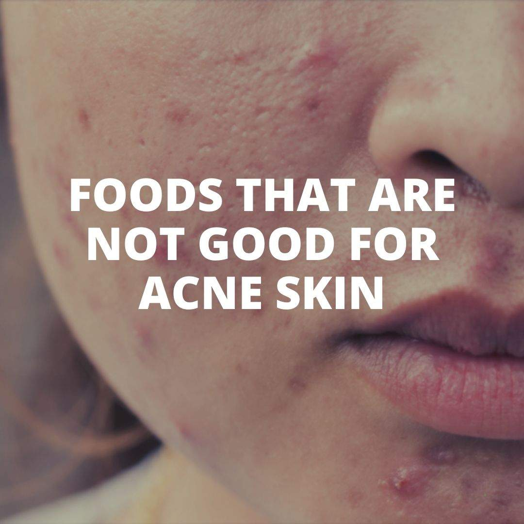 What food eat with acne skin