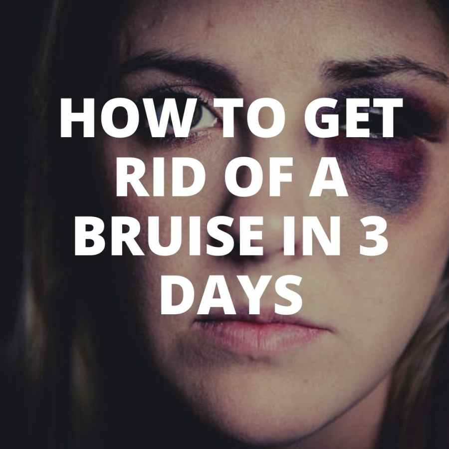 how to get rid of a bruise quick