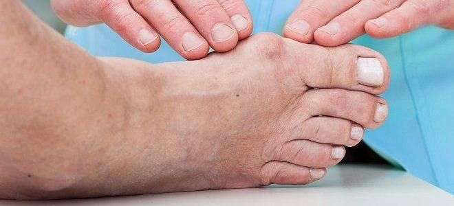2. What symptoms does Gout include?